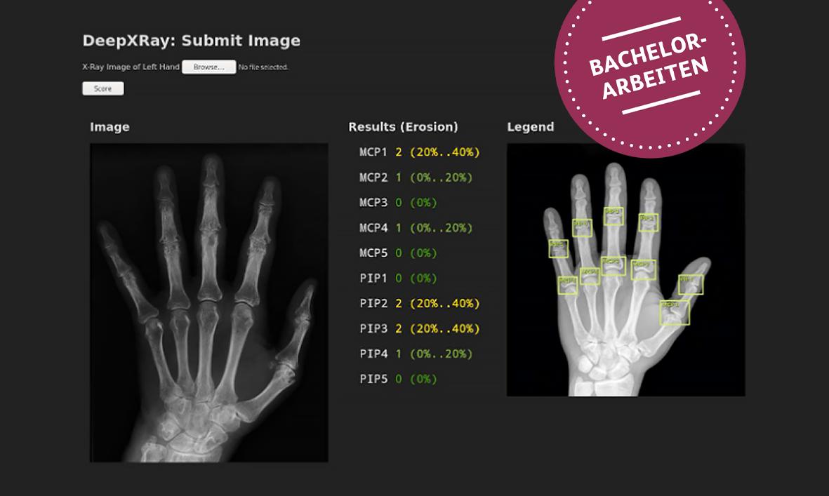 Deep Learning für die Rheumatologie